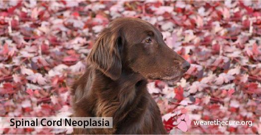 Spinal Cord Neoplasia